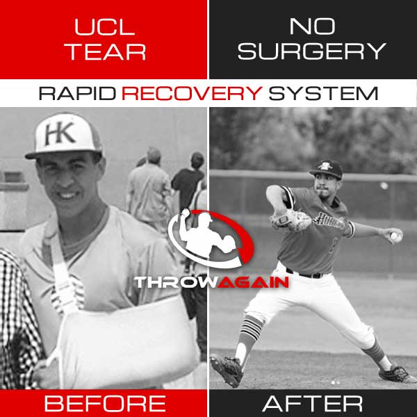 Recover from a UCL tear without Tommy John Surgery